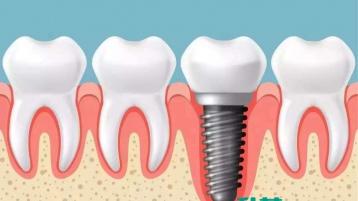 种植牙知识分享!中山种植牙哪家医院好?
