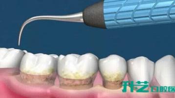 治疗牙龈萎缩,中山口腔哪家医院好?