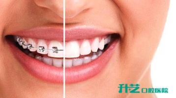 单排牙齿矫正危害分析!中山附近哪有口腔医院?