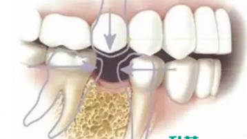 牙齿缺失危害多!在中山选哪里种植牙齿好?
