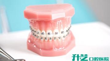 在中山,矫正牙齿哪家医院效果好?