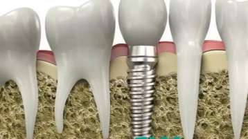 中山市种植牙修复,选哪家医院好?