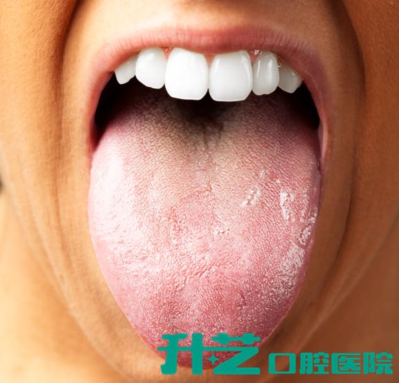 越重要越被忽略!这些口腔知识一定要了解——牙膏中含有的研磨剂并不都是有害的