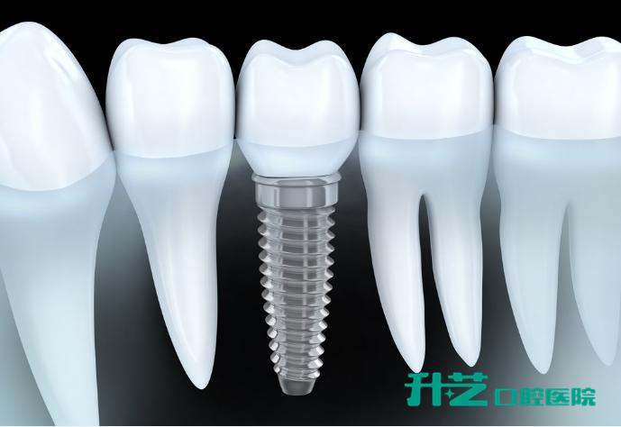保护种植牙,从手术中开始