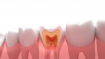 种植牙的寿命是多久,一般能用几年?
