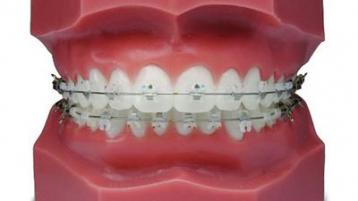 牙科知识科普丨牙齿正畸时,为什么你的牙托槽会掉?