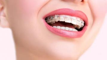 在中山口腔医院,做牙齿矫正有哪些变化?