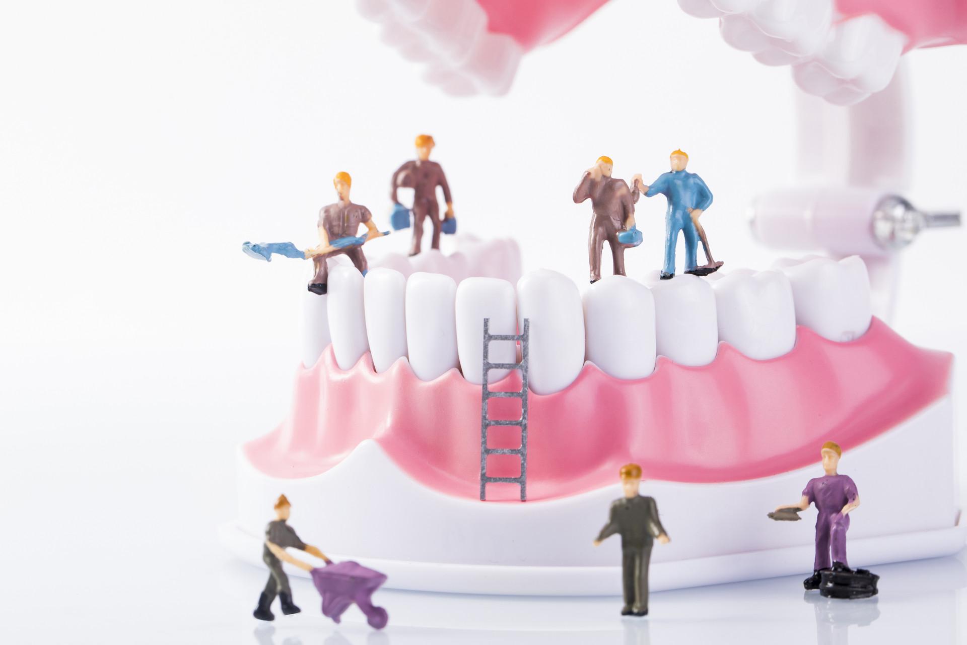 种植牙手术