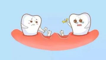 中山牙科医院告诉你,牙周病的7大典型症状有哪些?
