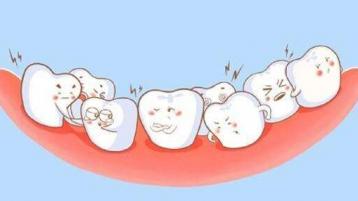 中山口腔医院为你科普:牙齿矫正有什么好处?