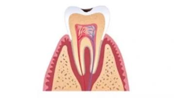 牙疼到失眠?还不做牙齿修复可以撑多久?