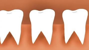 中山口腔牙科:牙齿频繁出现疼痛?对症解决,远离牙疼