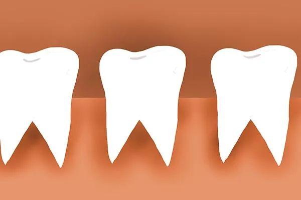 种植牙医院