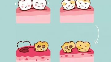 小榄口腔医院:牙周病是怎么形成的,都有哪些症状?