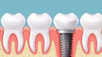 种植牙好不好?相对其他修复方式,它到底有哪些优势?