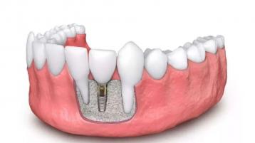 种植牙齿好不好?看完你就有答案了!