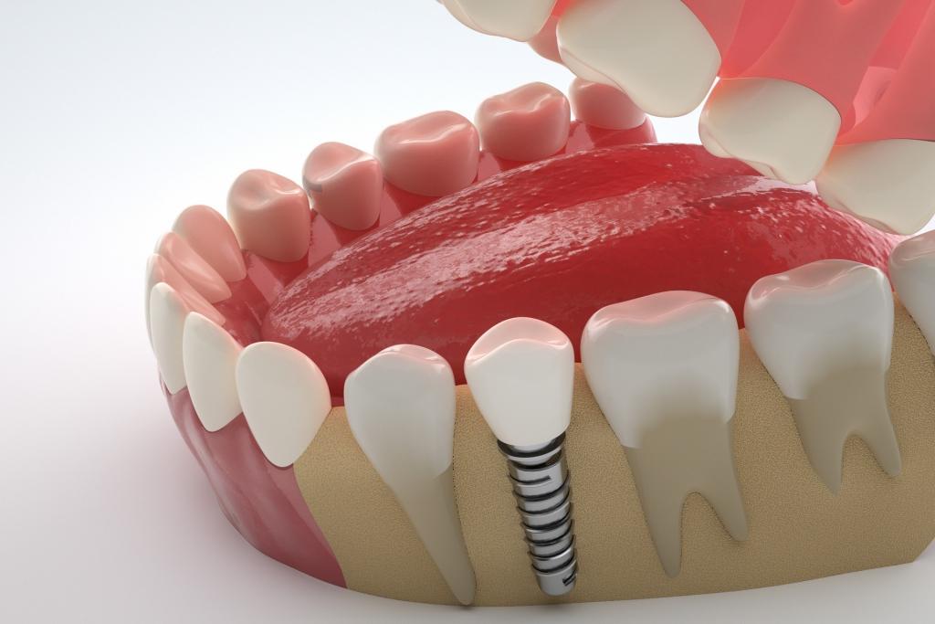 镶牙与种植牙区别