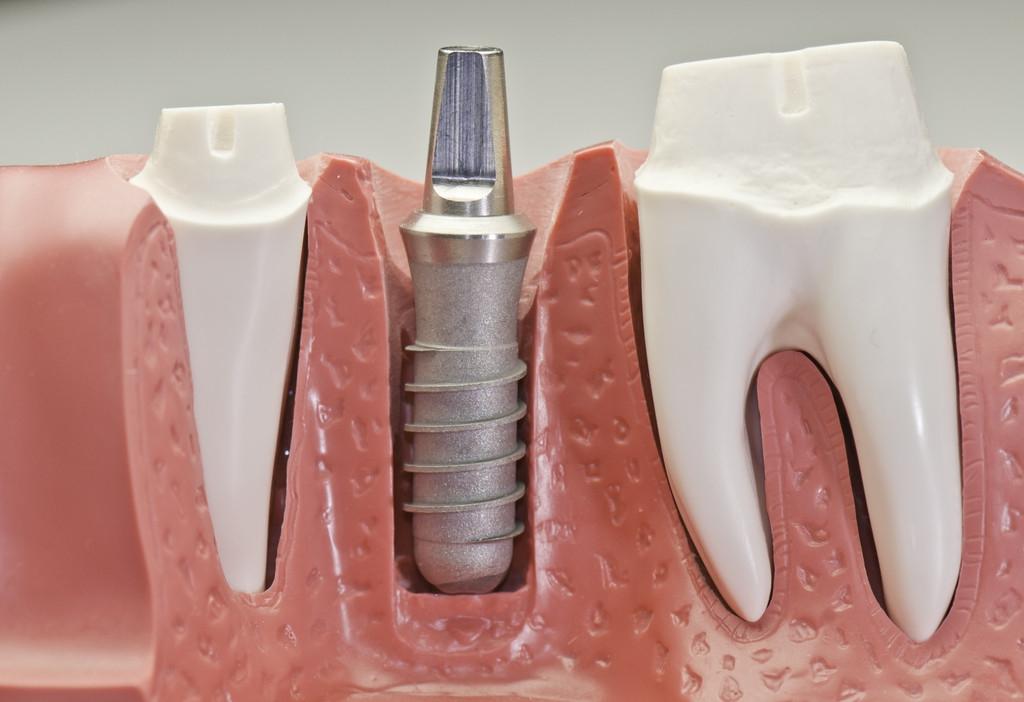 种植牙过程痛苦吗