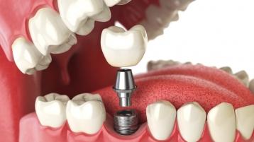 中山口腔医院为你深度解析:种植牙过程痛苦吗?