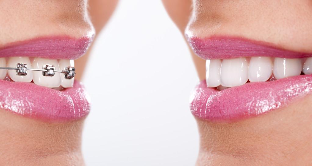 牙齿正畸的好处
