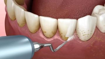 中山牙科医院辟谣:2021年了,大家对洗牙还有这么多误解?